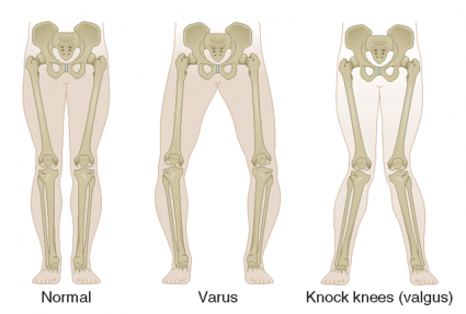The Knee Issues Series: Human Knee