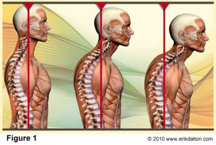 Forward Head Posture Denver Chiropractor_0