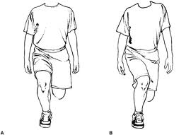knee-valgus-on-lunge
